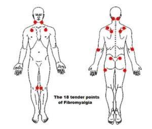 FBS tender points